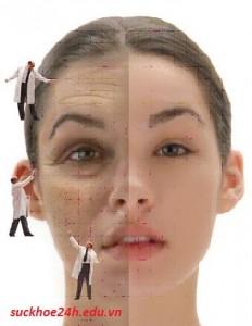 Nguyên nhân, cách điều trị nám da, tàn nhang
