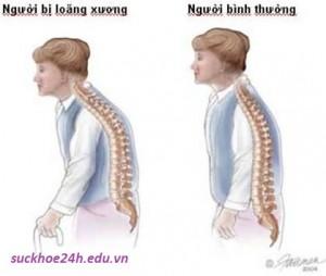 Nguyên nhân, triệu chứng bệnh loãng xương