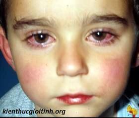 Nguyên nhân, triệu chứng viêm kết mạc, nguyen nhan trieu chung viem ket mac