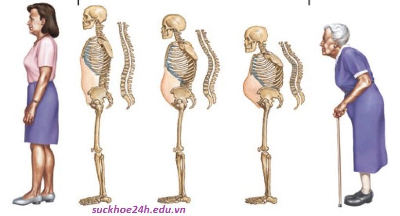 Bệnh loãng xương khi về già, trieu chung benh loang xuong o nguoi gia