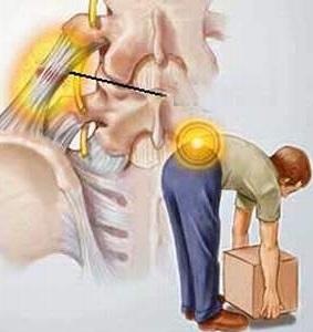 3 nguyên nhân gây bệnh đau lưng ở người già, 3 nguyen nhan gay benh dau lung o nguoi gia