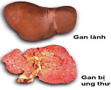 Uống nhiều rượu có thể gây ung thư gan, uong nhieu ruou co the gay ung thu gan